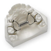 Fixed Palate Expander